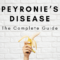 Peyronies Disease: The Complete Guide