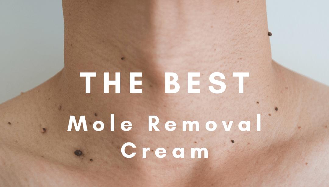 mole removal cost